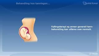 Graviditet og tannbehandling
