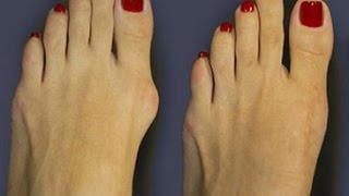 видео Грибок стопи і пальців ніг