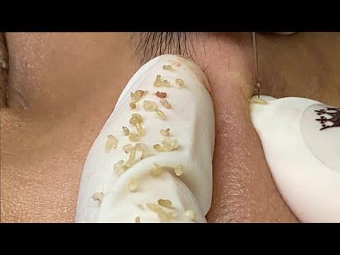 Pimples, Blackheads Under The Skin | Mụn Ẩn Dưới Da - SacDepSpa#150