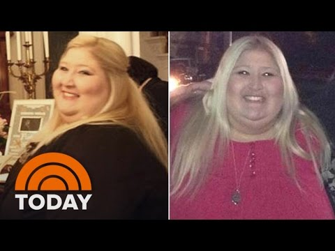 Woman Loses 350 Pounds After Getting Stuck In A Turnstile | TODAY
