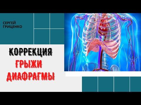 Диафрагмальные грыжи, грыжи пищеводного отверстия диафрагмы