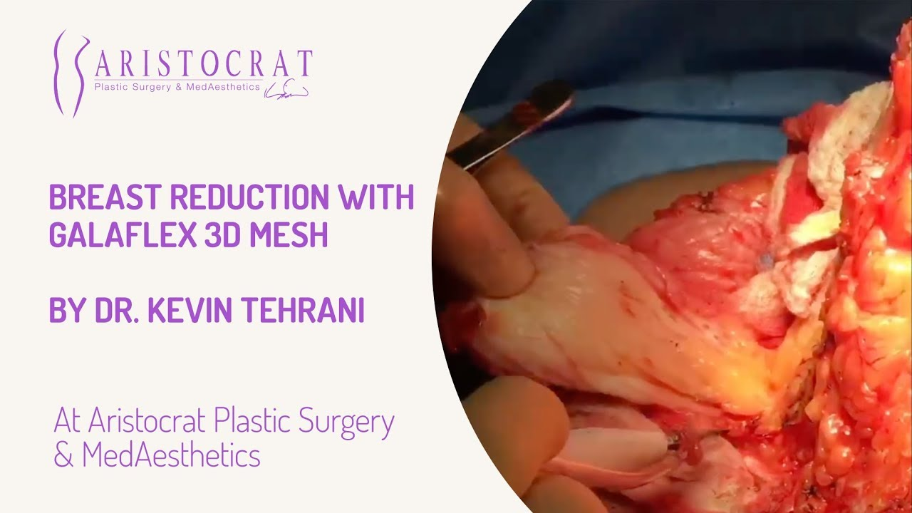 Mesh in breast surgery