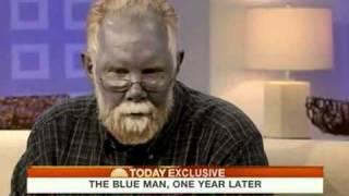 الرجل الأزرق حقيقة وليست خيال