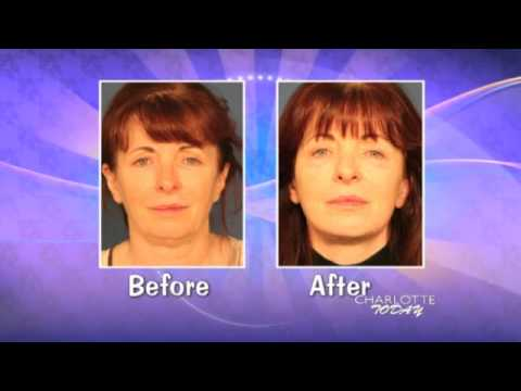Facelift on Charlotte Today - Dr. Bednar Discuss Fat Transfer FaceLift