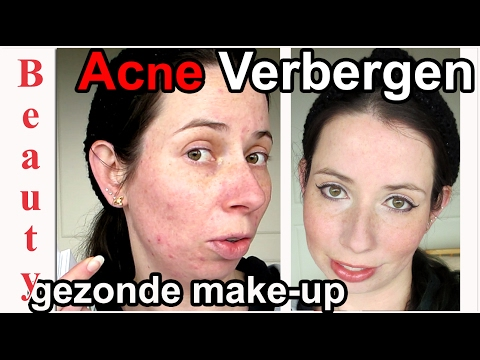 Acne Verbergen met Make Up 😲 | Organic Makeup | Minerale Foundation ~ Beauty Tutorial