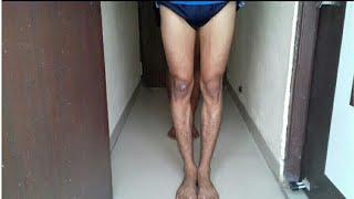 घुटने के दोष से छुटकारा Knock knee Problem solution thumbnail