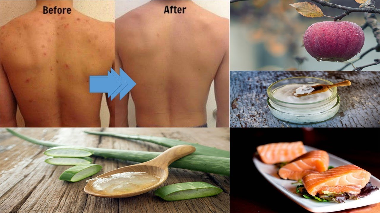 How To Get Rid Of Bumps On Arms - Youtube-4632