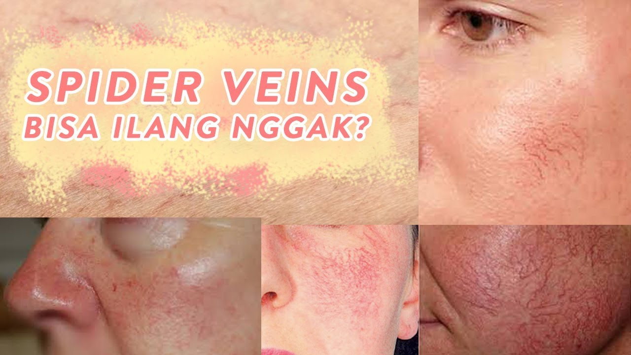 Cara Menghilangkan Urat Halus Di Wajah Skincare 101 Youtube