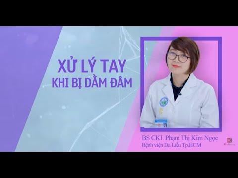 Cách xử lí dằm khi bị đâm vào tay Bệnh viện da liễu TP.HCM – TVC quảng cáo Kim Marcom