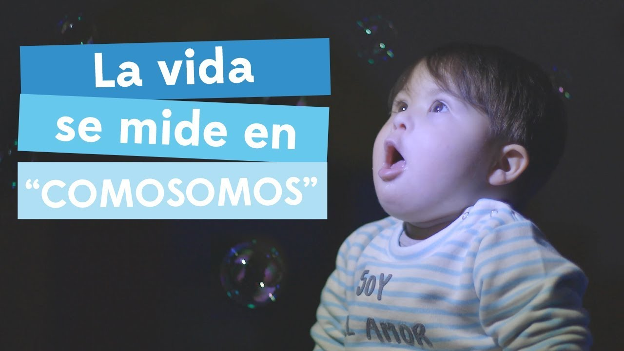 un niño con sindrome de down puede tener autismo