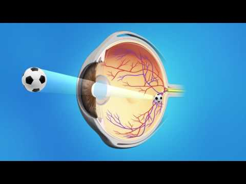 Cataract Surgery With A Multifocal Lens