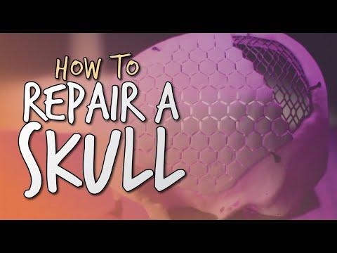 Cranioplasty procedure - GoPro footage