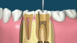 Лечение зубов - операция по лечению корней зуба(http://www.liderstom.ru/lechenie-zubov/ Лечение корней зубов процедура вскрытия пульпы, лечение каналов зуба гуттаперчей., 2016-05-08T15:29:51.000Z)