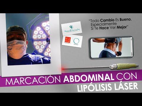 Marcación Abdominal Femenina  con Lipolisis Laser  Casos Bogotá - Colombia