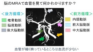 脳の血管を画像で見てどこに届くか見届けよう!