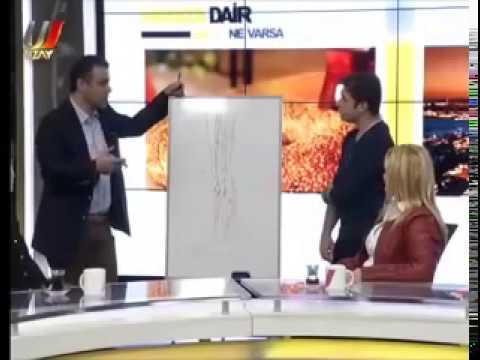 Huzursuz Bacak Sendromu Nedir, Nasıl Tedavi Edilir ? - Prof. Dr. Ahmet AKGÜL