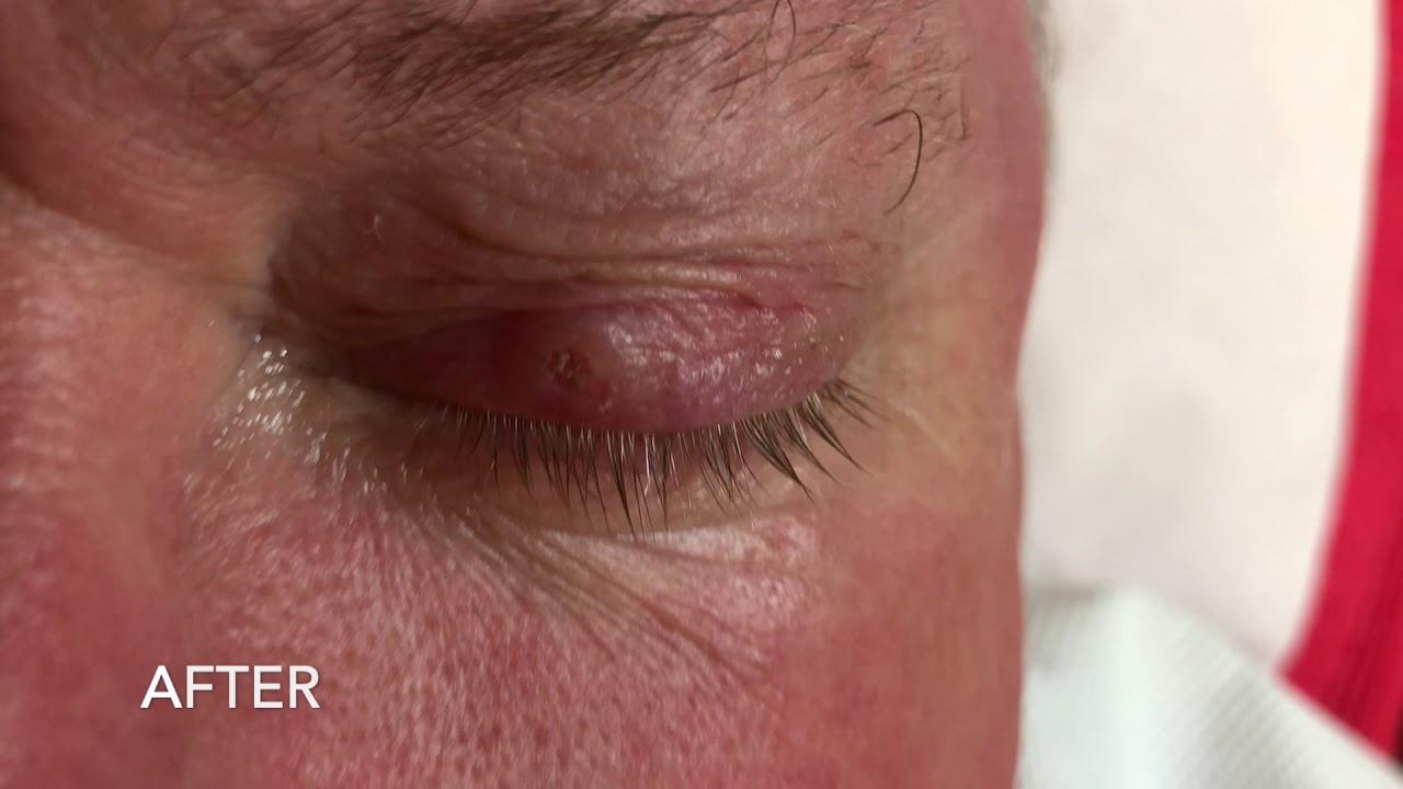 Nasos az orrban: fotó, okok, eltávolítás - Fordított papilloma orrszeptum
