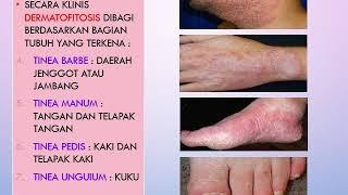 Obat Deuretika  Dan Obat Anti Jamur
