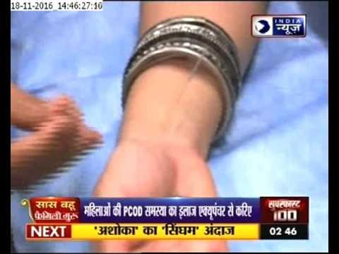 India tv programme on acupuncture