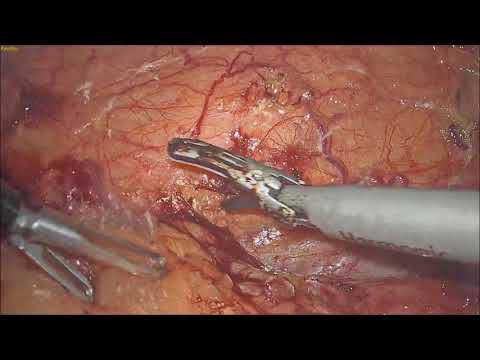 Right Laparoscopic Partial Nephrectomy for endophytic renal mass.