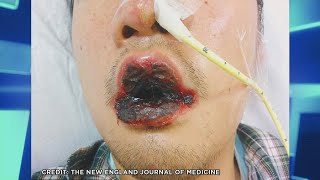Man's Black Lip Blisters Caused by Lung Infection