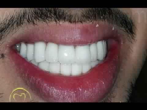 صدق او لا تصدق تبيض الاسنان خلال 2 دقائق فقط خلطة طبيعية صحية منزلية فعاله 100 Youtube