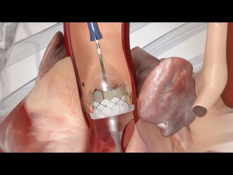 Transcatheter Valve Therapies