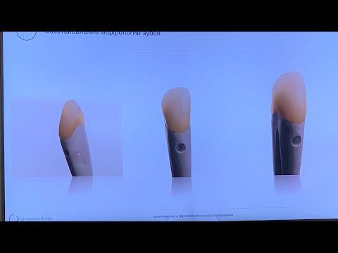 Лечение зубов , протезирование зубов , семинар по стоматологии , временные коронки , вертипреп