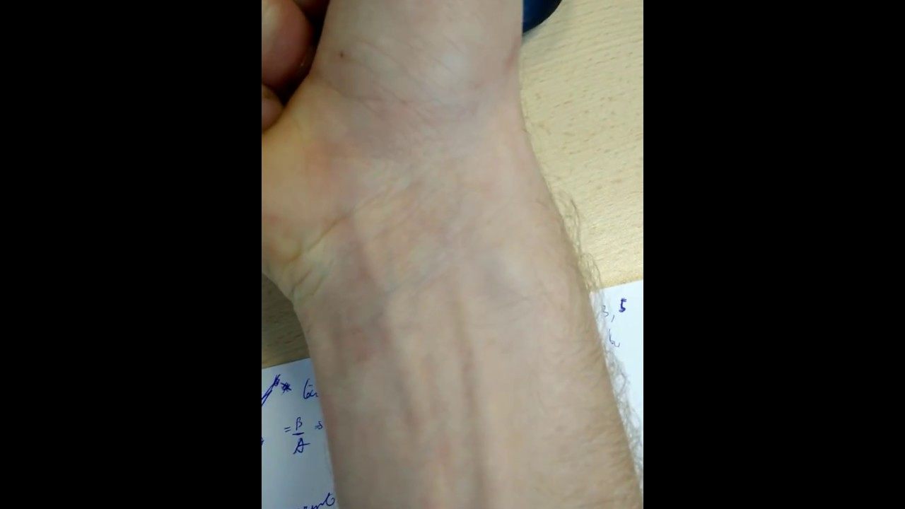 Tendon Snapping Popping In Wrist Youtube