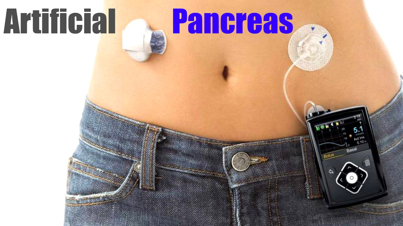 The Artificial Pancreas Minimed 670g Youtube