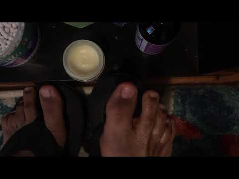 Natural Fix for Athlete foot , The Balm that does wonders , Stop itch , burn and bad odor.
