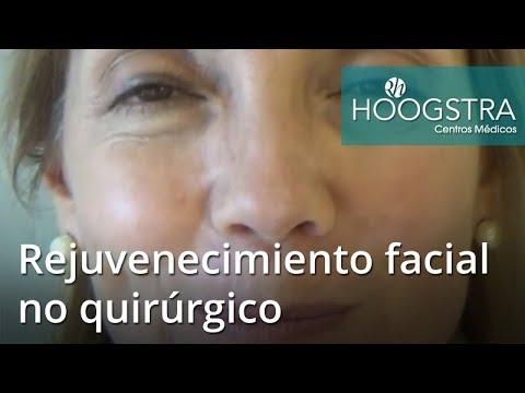 Rejuvenecimiento facial no quirúrgico (18117)