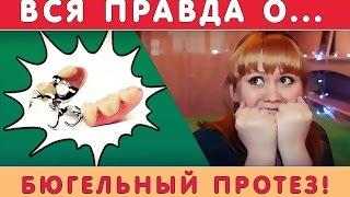 видео Бюгельное протезирование
