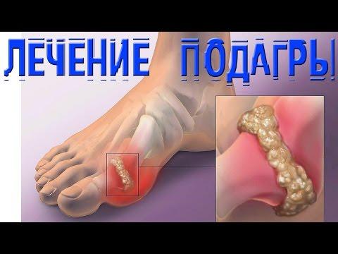 Подагра у мужчин: признаки, симптомы и лечение