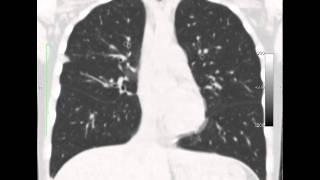 КТ легких(клинический случай на сайт radiographia.ru., 2011-04-19T09:02:06.000Z)