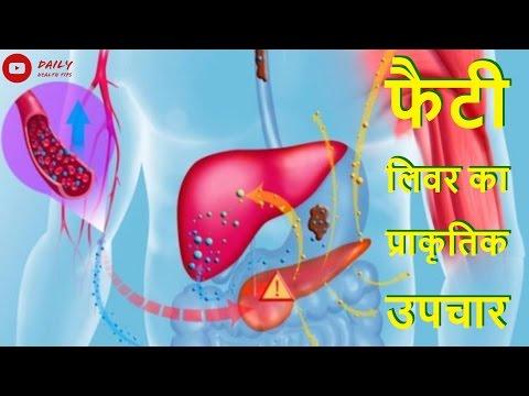 फैटी लिवर के लक्षण और घरेलू उपचार   Fatty liver Symptoms & Home Remedy in Hindi