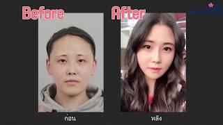 ศัลยกรรมเกาหลี: โปรเจคเปลี่ยนรูปลักษณ์จากใบหน้าที่เคยมีจุดด้อย