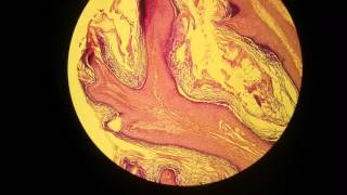 Skin   squamous cell papilloma  wart