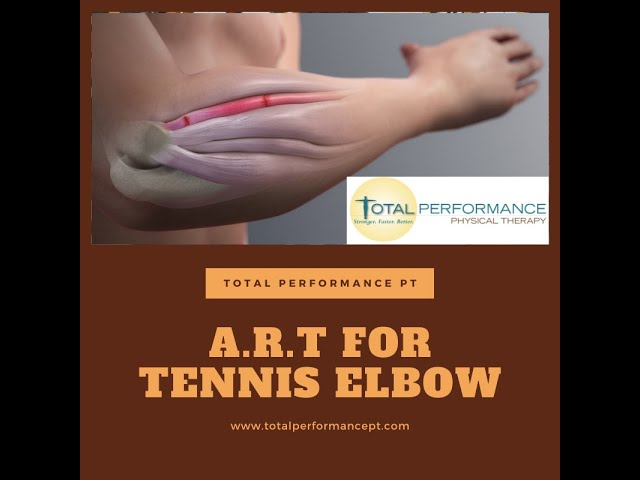 A.R.T. for tennis elbow