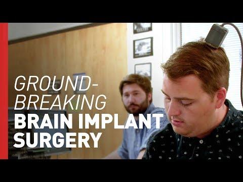 Brain Implant Restores Movement to Paralyzed Man   Freethink Superhuman