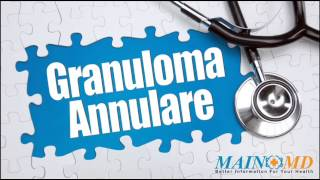 Granuloma Annulare ¦ Treatment and Symptoms