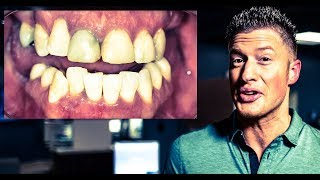 INVISALIGN, IMPLANTS, and Dental VENEERS - from PUERTO RICO for a SMILE! Cosmetic Dentistry (EP 3)