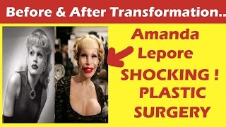 Amanda Leopore Plastic Surgery Before and After Full HD