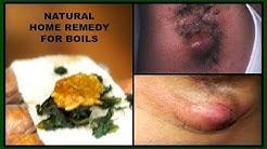 hqdefault - Cure Acne Under Armpits