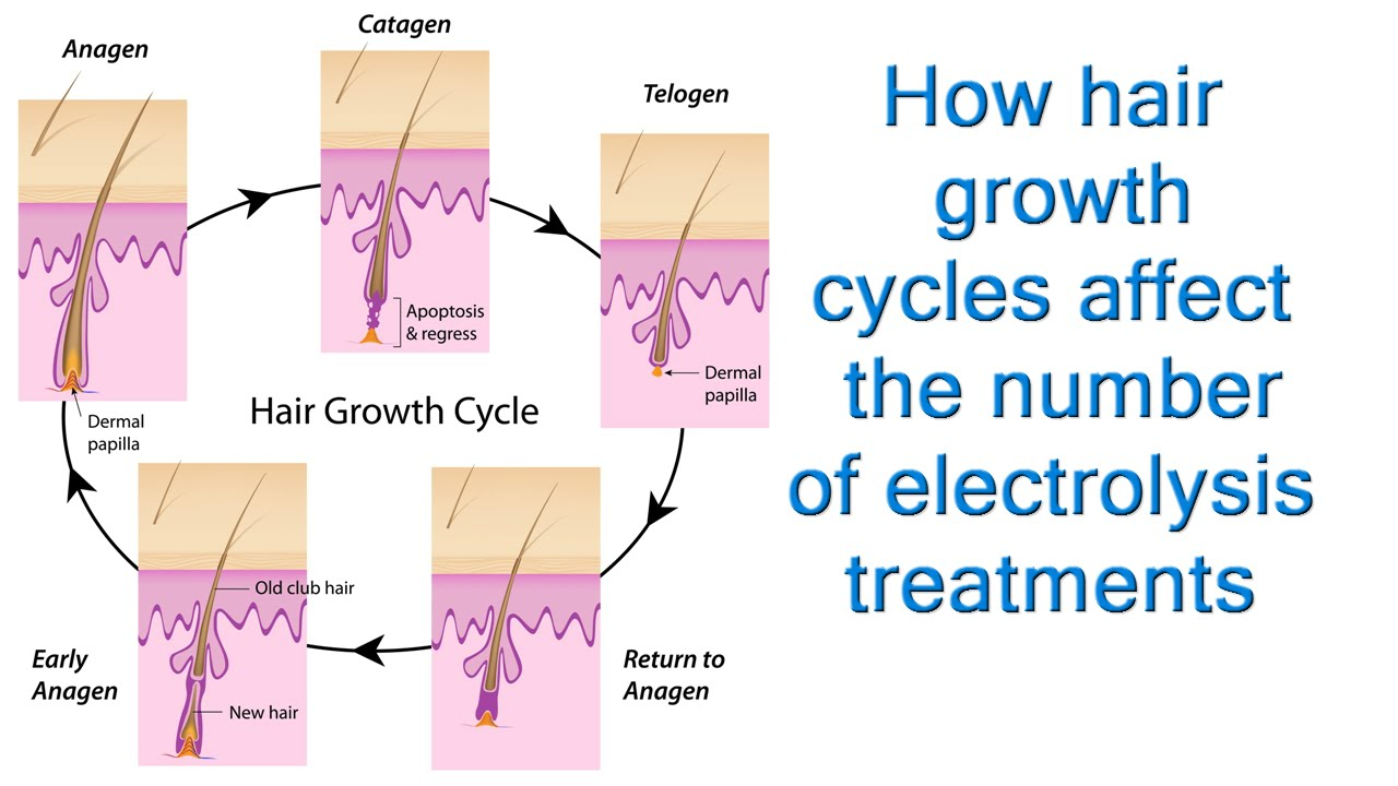 Hair cycles, or, Why do we need more than one treatment if electrolysis is  indeed permanent hair rem
