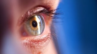 Вторичная катаракта после замены хрусталика (фиброз задней капсулы)(Видео о вторичной катаракте после операции по замене хрусталика (помутнение задней капсулы) - причины и..., 2016-01-29T16:15:39.000Z)