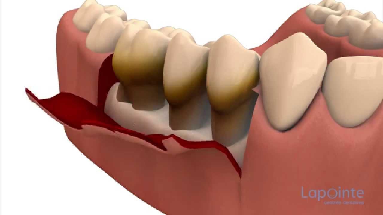 """Résultat de recherche d'images pour """"lambeau chirurgie dentaire"""""""