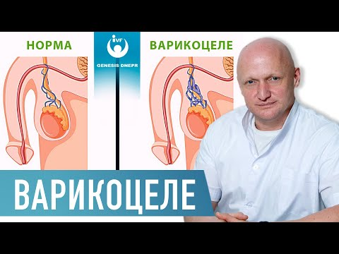 Что болит при варикоцеле