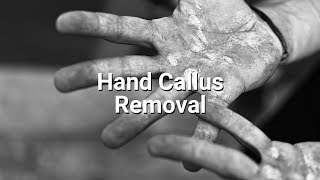 Hand Callus Removal for Crossfitters/Powerlifters/Weightlifters