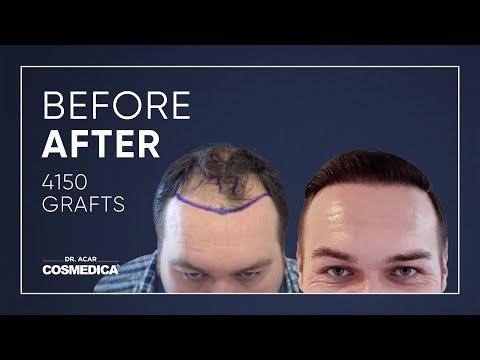 youtube2-greffedecheveuxenturquie-greff-cheveux